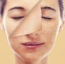 7 Best Solutions To Overcome Dry Skin