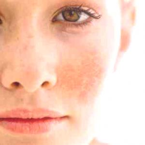 The Nature of Melasma & Post-Inflammatory Hyperpigmentation